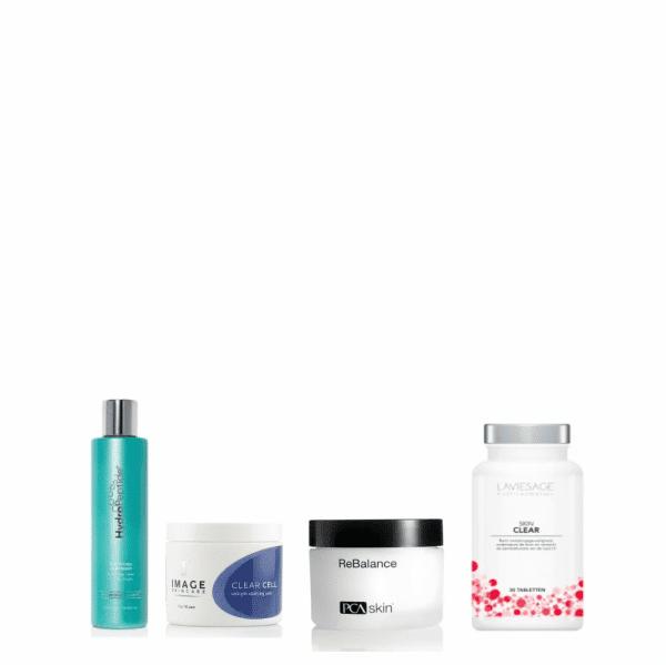 acne-verminderen-vette-huid